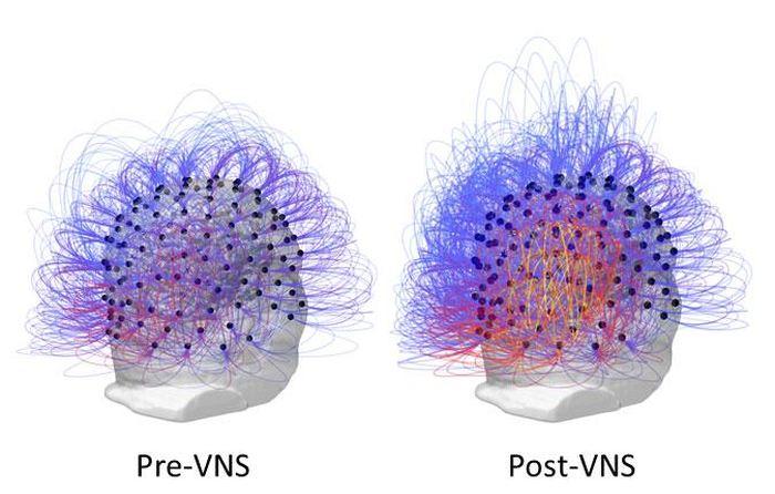 Cette image montre l'échange de l'information à travers toutes les électrodes avant et après la stimulation vagale. Sur la droite, les couleurs orange/jaune indique une augmentation de la connectivité dans les régions du lobe pariétal - Crédit : Corazzol et al.