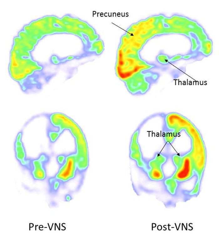 Des images montrant l'amélioration dans certaines zones du cerveau après une stimulation vaguale de 3 mois - Crédit : Corazzol et al.