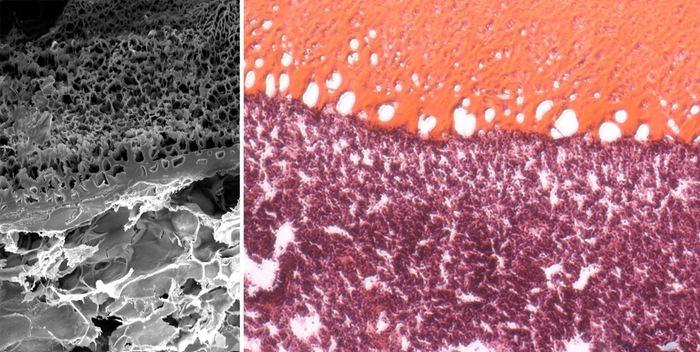 Un scan de micrographie électronique (sur la gauche) et une coloration histologique (sur la droite). Les deux montrent comment la colle chirurgicale MeTro (en haut) est appliqué sur une zone endommagée du poumon et se verrouille avec la surface. Le tissu élastique est totalement scellée sans nécessiter de sutures et d'agrafes - Crédit : Wyss Institute at Harvard University