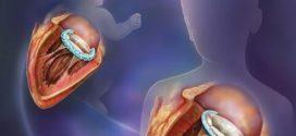 Un implant chirurgical qui s'adapte à la croissance d'un enfant
