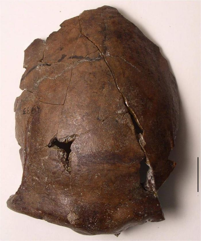 Le fragment d'un crâne découvert à Aitape en Papouasie-Nouvelle-Guinée en 1929. Le fragment est daté de 6 000 ans et il semble que c'est la plus ancienne victime d'un tsunami - Crédit : Arthur Durband, Kansas State University