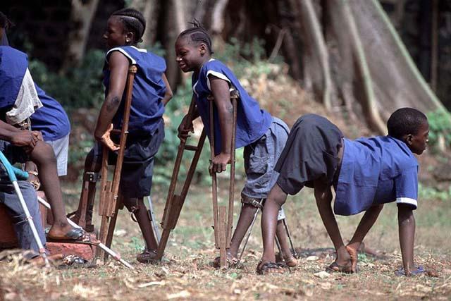 Des enfants atteints par la polio - Crédit : lesobservateurs.ch