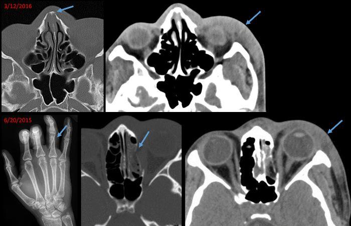 Des images de radiologie d'une femme de 21 ans qui présentait une fracture de l'os nasal et un gonflement sur les tissus mous sur le coté gauche du visage. Une analyse des registres médicaux a révélé que 9 mois auparavant, le patient avait souffert d'une fracture du doigt, d'une fracture de la paroi interne de l'orbite gauche et des gonflements similaires sur le coté gauche du visage. Ces observations suggèrent une violence conjugale récurrente - Crédit : Elizabeth George, Brigham and Women's Hospital