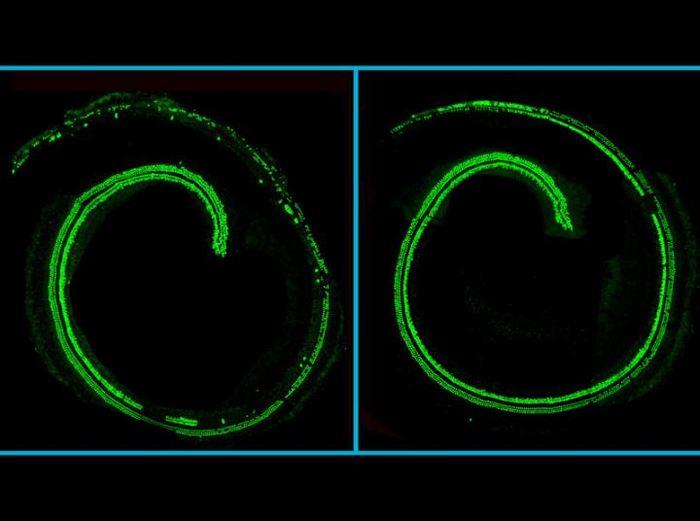 Des images de microscope de la cochlée d'une souris. Les cellules capillaires en vers. A gauche, une cochlée non traitée d'une souris avec la mutation TMC1 en affichant des pertes de cellules. A droite, une cochlée, traitée avec CRISPR-Cas9, montre une préservation de la cellule - Crédit : Gao et al./Nature 2017