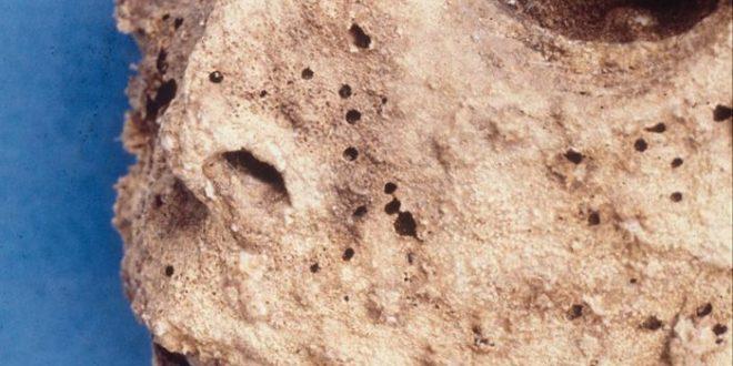Une ancienne momie avait l'hépatite B plutôt que la variole