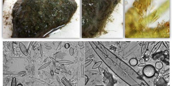 La pollution pharmaceutique crée une résistance microbienne dans les cours d'eau urbains