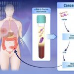 Les chercheurs proposent un test de cancer, appelé CancerSEEK, qui peut détecter 8 types de cancer avec une précision de 69 à 98 %. Cela reste des essais à petite échelle, mais si le test est efficace, alors le cout serait inférieur à des tests individuels.