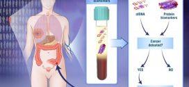 CancerSEEK, un test expérimental pour 8 types de cancer