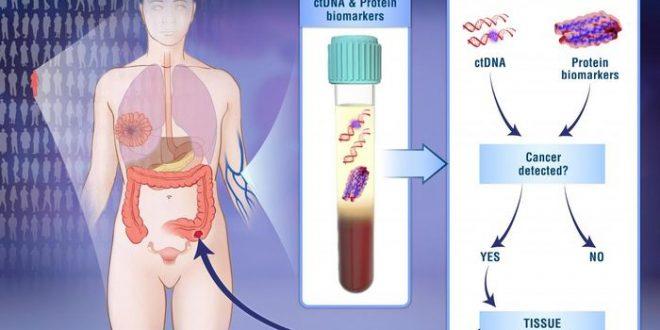 Un test sanguin prometteur pour détecter certains cancers