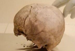 Un crâne datant de 2 300 avant notre ère provenant d'Hälsingland en Suède - Crédit : Alissa Mittnik