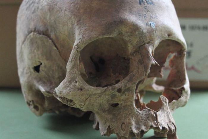 Un crâne d'une femme du charnier de Repton - Crédit : Cat Jarman