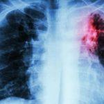 On estime que 1,8 million de jeunes âgés de 10 à 24 ans développent une tuberculose (TB) chaque année. Les jeunes adultes âgés de 20 à 24 ans étant les plus exposés au risque de développer une tuberculose infectieuse selon une étude publiée dans la revue European Respiratory Journal.