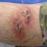 Des lésions cutanées sur une jambe d'un patient infecté par le parasite Leishmania - Mariwan Musa Mohammed Al-Bajalan, et al. 2018