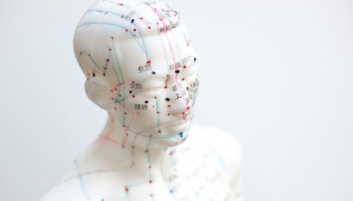 Certains considèrent l'acupuncture comme une alternative sûre aux médicaments tandis que d'autres soutiennent qu'il n'y a pas de preuve convaincante de bénéfice clinique et de potentiel de préjudice. Alors, est-ce que les médecins devraient-ils recommander l'acupuncture pour la douleur ? Des experts débattent de la question dans la revue BMJ. La réponse est NON dans la majorité des cas.