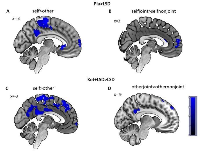 Le LSD a réduit l'activité dans le cortex cingulaire postérieur et le cortex temporal qui sont des régions du cerveau qui sont importants pour ressentir l'expérience de soi - Preller et al., JNeurosci (2018)