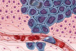 Les cellules cancéreuses en développement (en pourpre) sont entourés par des cellules saines (en rose) en illustrant une tumeur principale qui se propage dans d'autres parties du corps via le système circulatoire - Crédit : Darryl Leja, NHGRI