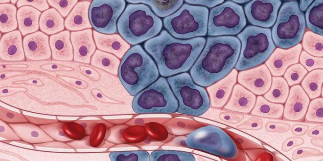 Pan-Cancer, une nouvelle classification des cancers