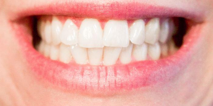 Une recherche suggère que de simples règles de développement peuvent aboutir à la variation complexe et infinie de la forme des dents comme les molaires chez les humains modernes et leurs proches parents.