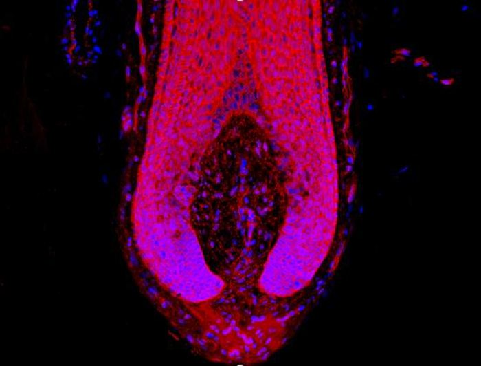 Immunofluorescence de la protéine β-caténine (rouge) et le noyau de la cellule (bleu) dans le bulbe de follicule pileux humain qui est le centre de contrôle de la croissance des cheveux - Crédit : Dr. Nathan John Hawkshaw