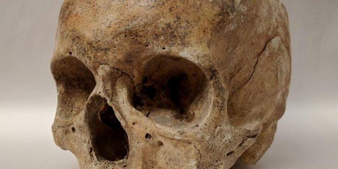 Reste d'un squelette montrant des signes de lèpre provenant du cimetière Odense St. Jørgen au Danemark qui a existé de 1270 jusqu'à 1560 - Crédit : Dorthe Dangvard Pedersen