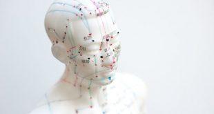 Une étude portant sur plus de 800 femmes australiennes et néo-zélandaises qui ont suivi un traitement d'acupuncture au cours de leur cycle de FIV (fécondation in vitro) n'a confirmé aucune différence significative dans les taux de naissances vivantes.