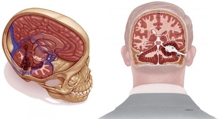 Une illustration d'artiste, basée sur les données de l'autopsie, des blessures à la tête de Robert F. Kennedy - Crédit : Megan Llewellyn, MSMI; copyright Duke University sous licence CC BY-ND 4.0