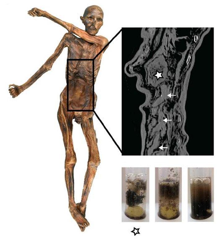 Cette image montre la conservation du tractus gastro-intestinal (GI) de l'Homme des glace et sa texture. L'image radiographique montre l'estomac complètement rempli (astérisque) et les boucles intestinales du tractus gastro-intestinal inférieur (flèches). Des échantillons de contenu de l'estomac (gauche, astérisque) et de 2 sites différents dans le tractus gastro-intestinal inférieur (milieu, droit) qui ont été réhydratés dans le tampon phosphate - Crédit : Institute for Mummy Studies\Eurac Research\Frank Maixner