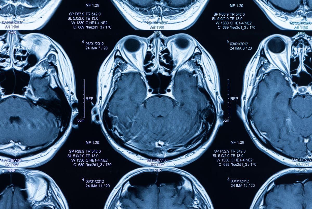 La reprise de conscience après une lésion cérébrale aigue pose toujours un problème. Mais une nouvelle étude montre des pistes intéressantes sur l'état de conscience des patients.