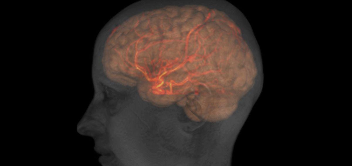 Image IRM de la tête, du cerveau et des grandes artères d'une femme adulte en bonne santé. Avec l'aimable autorisation de Patrick Hales, UCL / Wellcome Institute