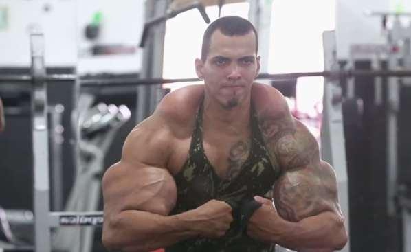 Un Bodybuilder s'injecte du Synthol pour ressembler à Hulk