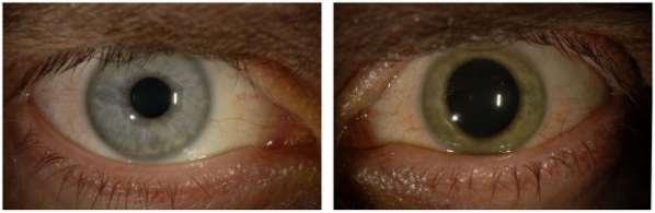 Le virus Ebola a survécu dans l'oeil d'un homme pendant des semaines