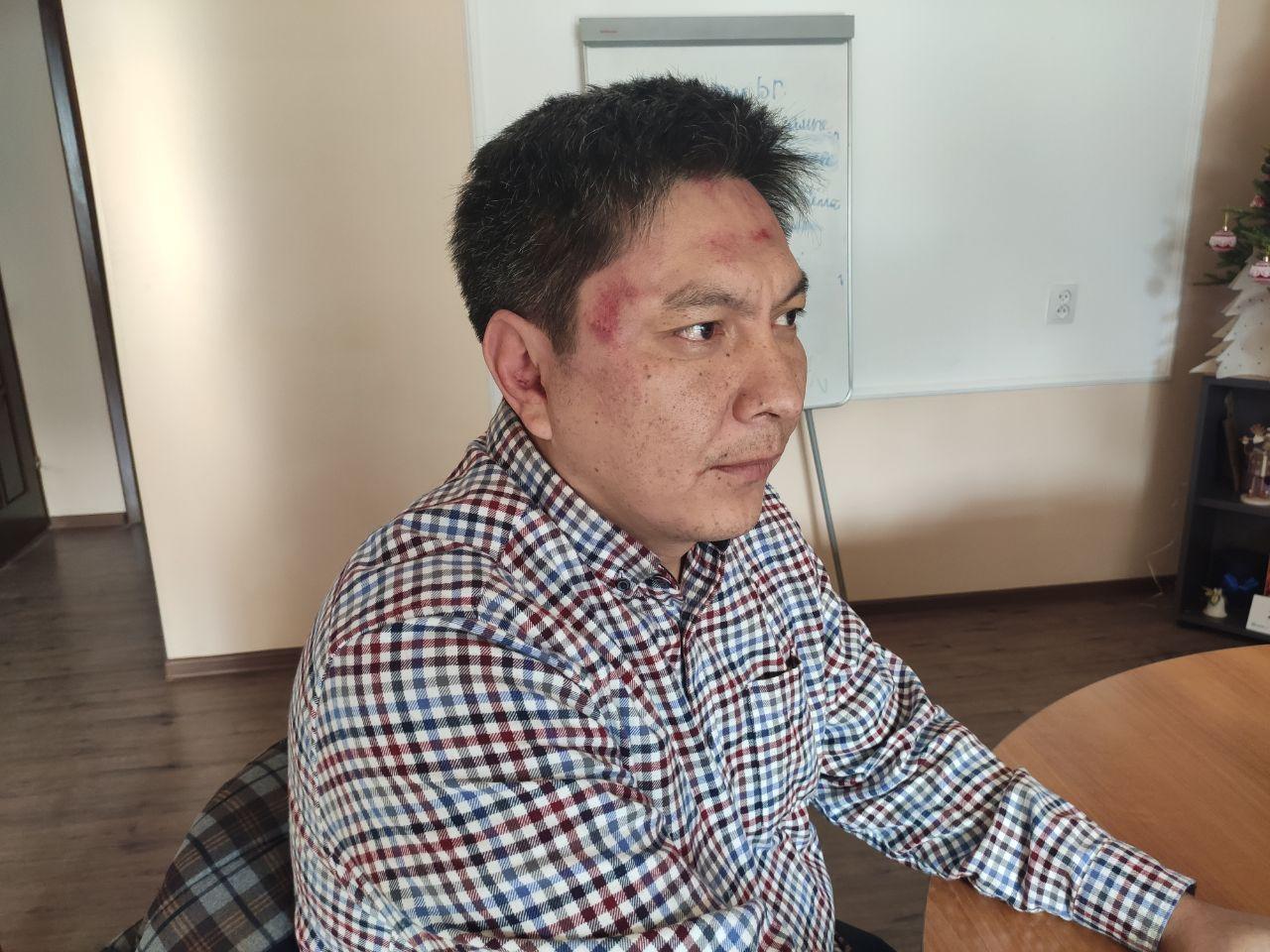 Болат Темиров после нападения. Фото: фейсбук-страница FactCheck KG