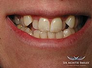Before Six Month Smiles treatment