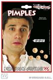 Pimples With Adhesive