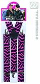 Pink & Black Zebra Braces