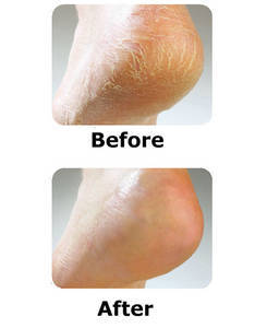Cracked heel repair patch, dry elbow foot care,