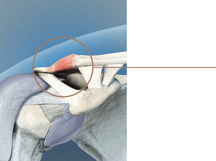 Ac Joint Disruption01