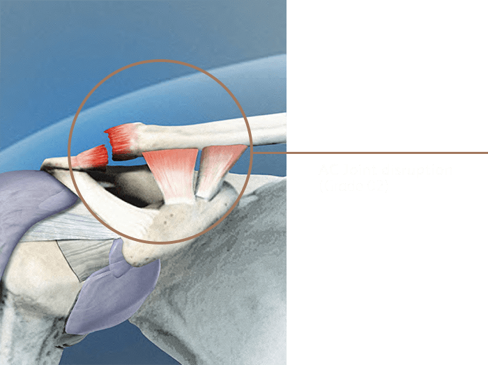 Ac Joint Disruption02
