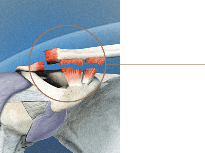 Ac Joint Disruption03