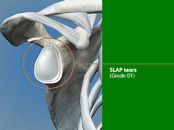 Slap Tear01