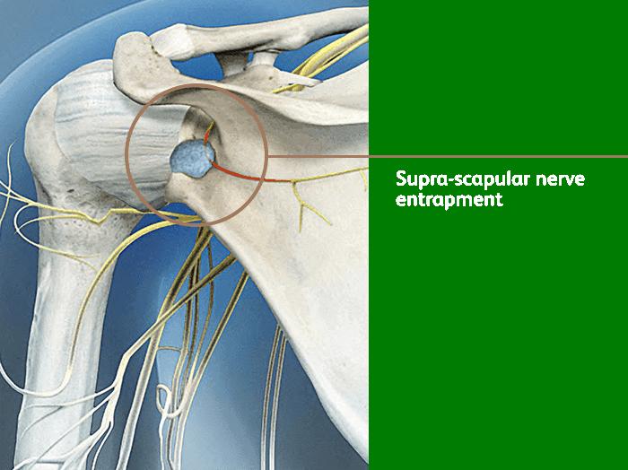 Supra Scapular Nerve Entrapment01