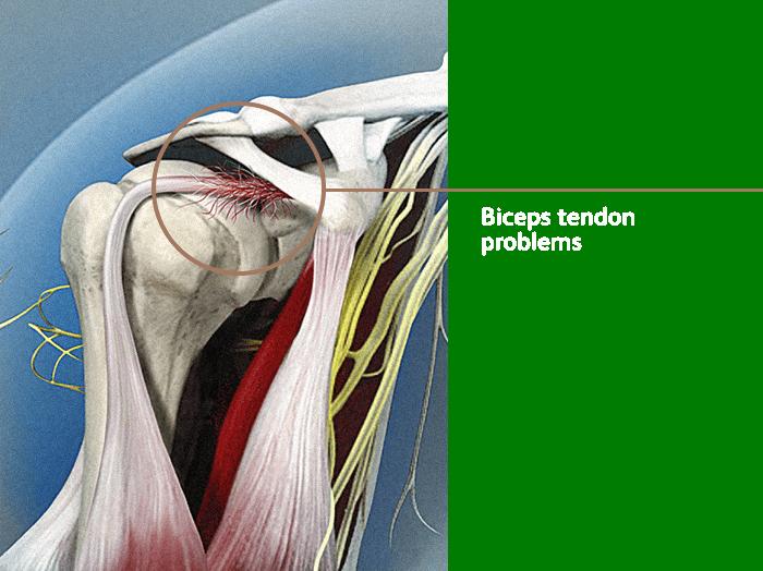 Biceps Tendon Problems