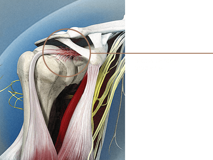 Biceps Tendon Problems