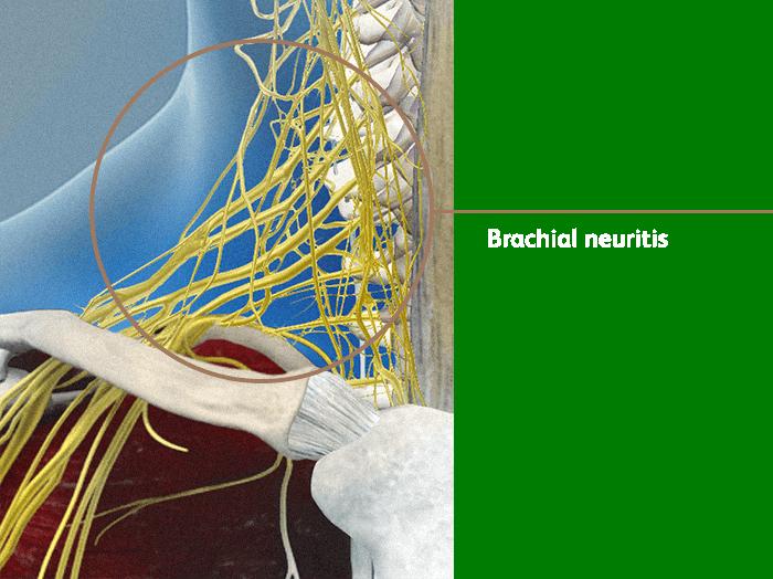 Brachial Neuritis