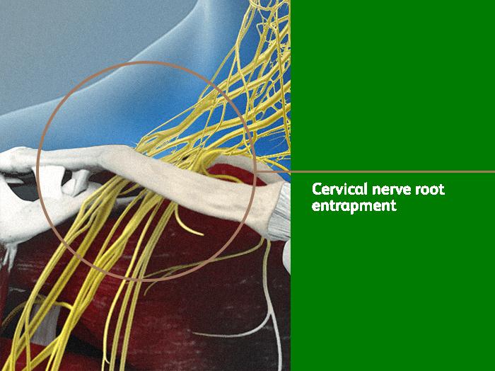 Cervical Nerve Root Entrapment