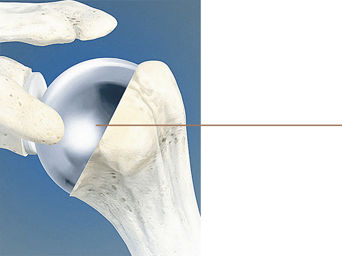 Shoulder Replacement04