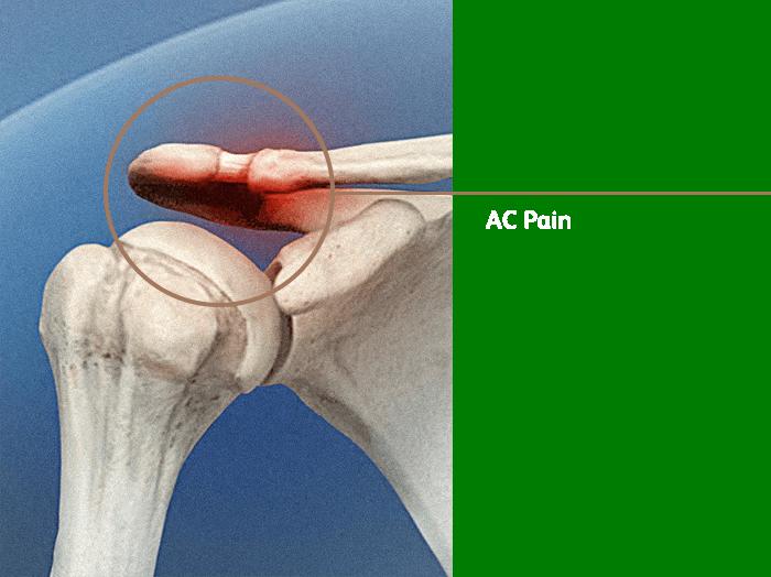 Ac Pain V02