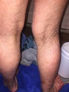 Etter bading bak knær.jpg
