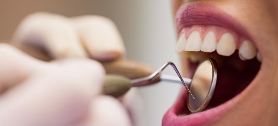 Finanzas e Inversión: Coberturas del seguro dental de AXA