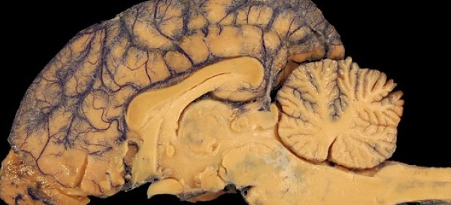 "Ciencia: Identifican parte del cerebro que percibe ""mala espina"""